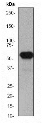 Western blot - Anti-Cytokeratin 5 antibody [EP1601Y] - Cytoskeleton Marker (ab52635)