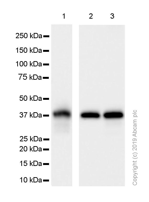 Western blot - Anti-Synaptophysin antibody [EP1098Y] (ab52636)