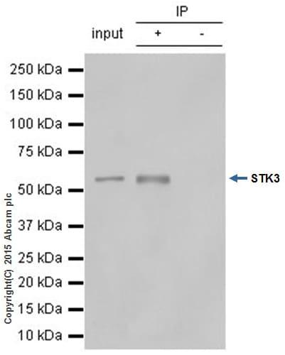 Immunoprecipitation - Anti-STK3/MST-2 antibody [EP1466Y] (ab52641)