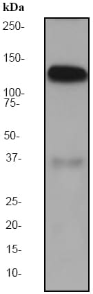 Western blot - Anti-Amphiphysin antibody [EP2060Y] (ab52646)