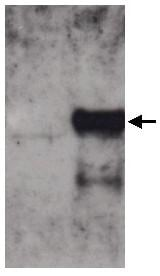 Western blot - Anti-Cytoglobin antibody (ab52662)