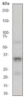 Western blot - Anti-TRAP/CD40L antibody [EP462E] (ab52750)
