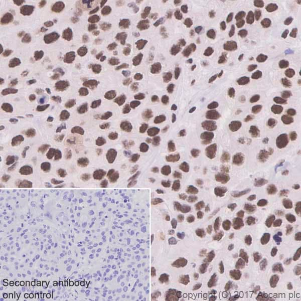 Immunohistochemistry (Formalin/PFA-fixed paraffin-embedded sections) - Anti-HSF1 antibody [EP1710Y] - ChIP Grade (ab52757)