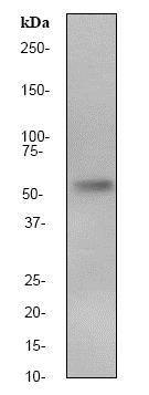Western blot - Anti-Calcineurin A antibody [EP1669Y] (ab52761)