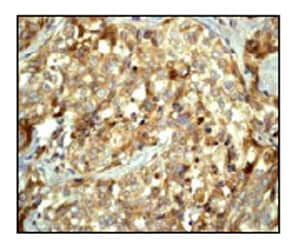 Immunohistochemistry (Formalin/PFA-fixed paraffin-embedded sections) - Anti-MAP1LC3A antibody [EP1983Y] - Autophagosome Marker (ab52768)