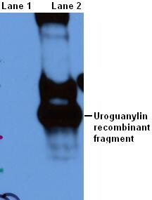 Western blot - Anti-Uroguanylin antibody (ab52806)