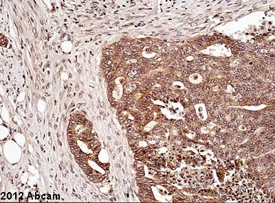 Immunohistochemistry (Formalin/PFA-fixed paraffin-embedded sections) - Anti-GLO1 antibody (ab52835)