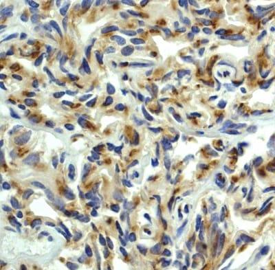 Immunohistochemistry (Formalin/PFA-fixed paraffin-embedded sections) - Anti-PDPK1 antibody [EP569Y] (ab52893)