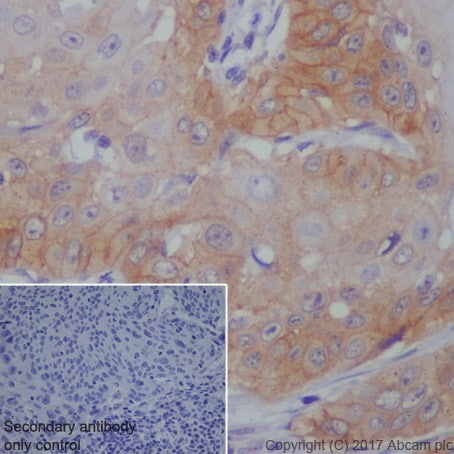 Immunohistochemistry (Formalin/PFA-fixed paraffin-embedded sections) - Anti-EGFR antibody [EP38Y] (ab52894)