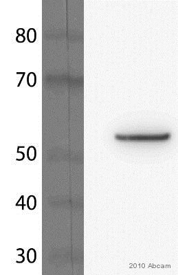 Western blot - Anti-beta Tubulin antibody [EP1331Y] - Microtubule Marker (ab52901)
