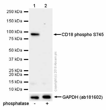 Western blot - Anti-CD18 (phospho S745) antibody [EP1288Y] (ab52920)