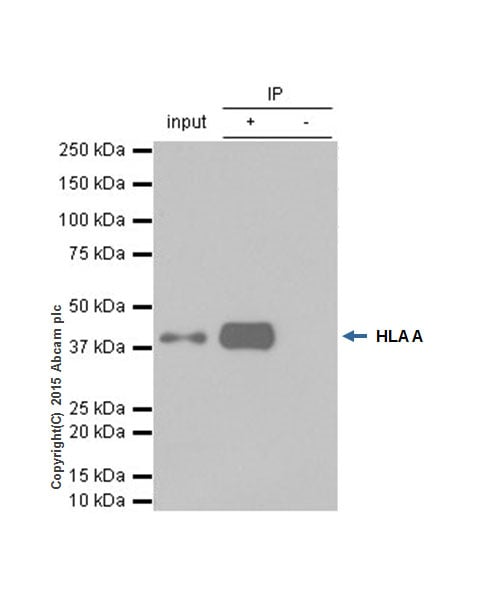 Immunoprecipitation - Anti-HLA A antibody [EP1395Y] (ab52922)