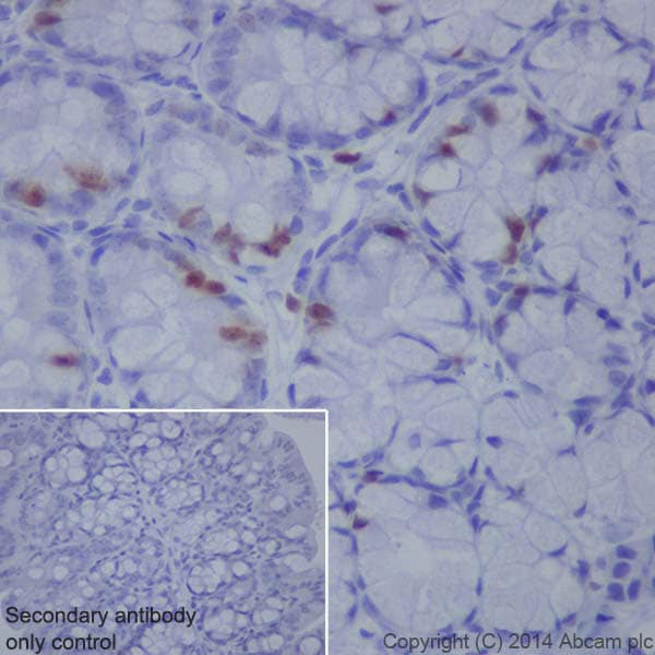 Immunohistochemistry (Formalin/PFA-fixed paraffin-embedded sections) - Anti-Topoisomerase II alpha antibody [EP1102Y] (ab52934)