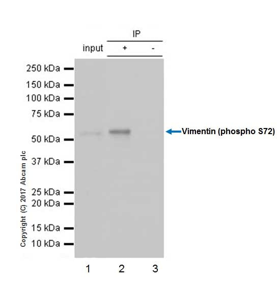 Immunoprecipitation - Anti-Vimentin (phospho S72) antibody [EP1070Y] (ab52944)