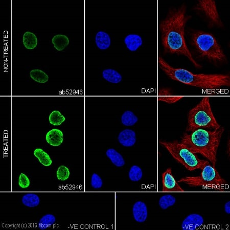 Immunocytochemistry/ Immunofluorescence - Anti-Histone H3 (acetyl K14) antibody [EP964Y] - ChIP Grade (ab52946)