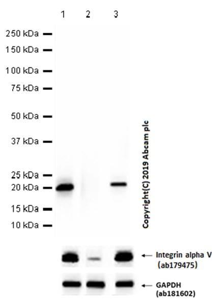 Western blot - Anti-CD3 epsilon antibody [EP449E] (ab52959)