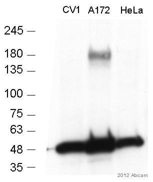 Western blot - Anti-MERTK antibody [Y323] (ab52968)