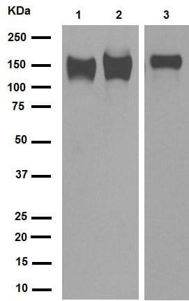 Western blot - Anti-Integrin beta 1 antibody [EP1041Y] (ab52971)