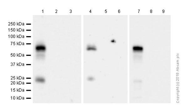Western blot - Anti-p75 NGF Receptor antibody [EP1039Y] (ab52987)