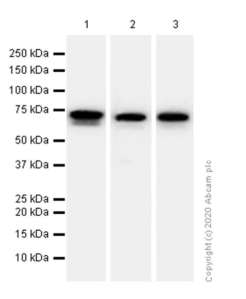 Western blot - Anti-68kDa Neurofilament/NF-L antibody [EP675Y] (ab52989)
