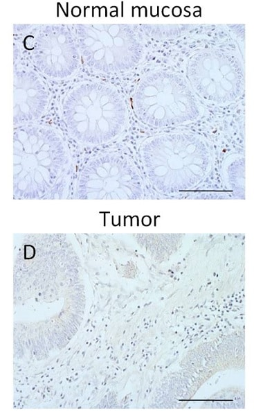 Immunohistochemistry (Formalin/PFA-fixed paraffin-embedded sections) - Anti-CD86 antibody [EP1158Y] - N-terminal (ab53004)