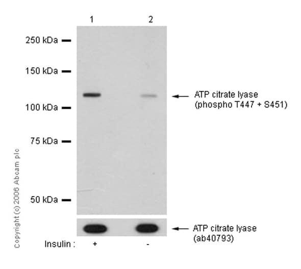 Western blot - Anti-ATP citrate lyase (phospho T447 + S451) antibody [EP737Y] (ab53007)