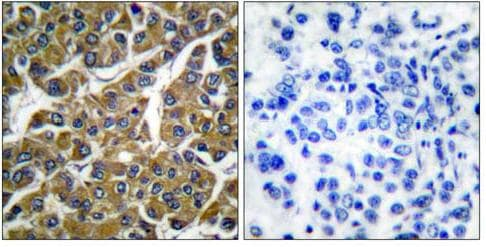 Immunohistochemistry (Formalin/PFA-fixed paraffin-embedded sections) - Anti-MMP3 antibody (ab53015)