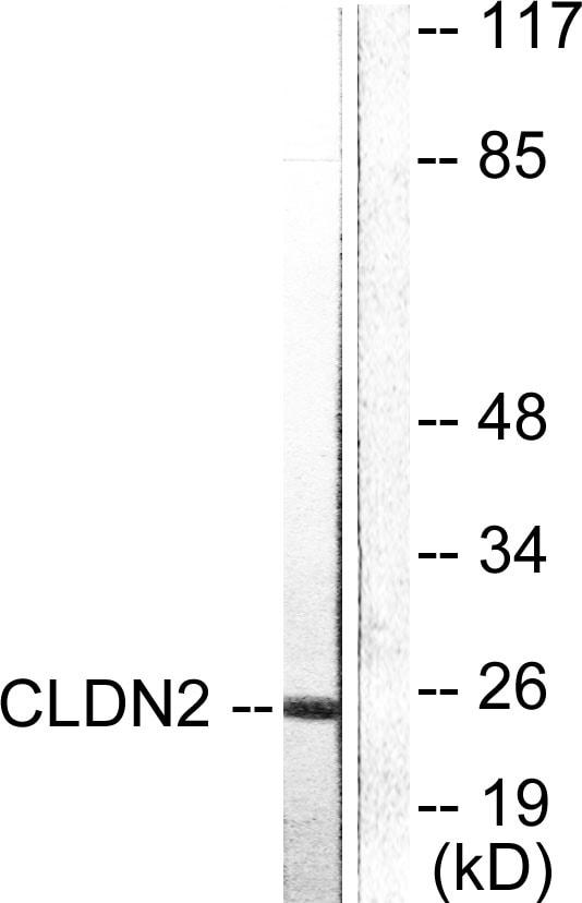 Western blot - Anti-Claudin 2 antibody (ab53032)