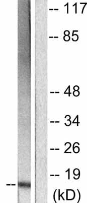 Western blot - Anti-p15 INK4b antibody (ab53034)