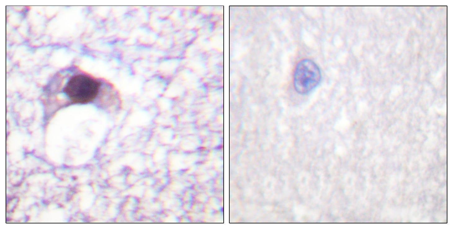 Immunohistochemistry (Formalin/PFA-fixed paraffin-embedded sections) - Anti-E2F6 antibody (ab53061)
