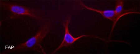 Immunocytochemistry/ Immunofluorescence - Anti-Fibroblast activation protein, alpha antibody (ab53066)