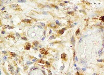 Immunohistochemistry (Formalin/PFA-fixed paraffin-embedded sections) - Anti-Fibroblast activation protein, alpha antibody (ab53066)