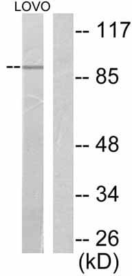 Western blot - Anti-Fibroblast activation protein, alpha antibody (ab53066)