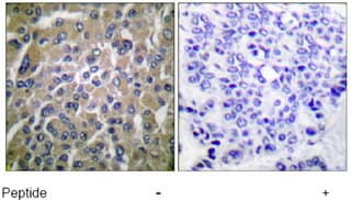 Immunohistochemistry (Formalin/PFA-fixed paraffin-embedded sections) - Anti-hCG beta antibody (ab53087)