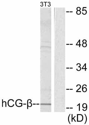 Western blot - Anti-hCG beta antibody (ab53087)