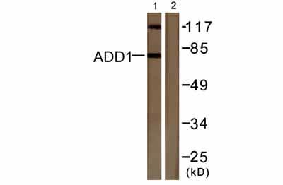 Western blot - Anti-alpha Adducin (phospho S726) antibody (ab53093)