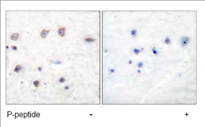 Immunohistochemistry (Formalin/PFA-fixed paraffin-embedded sections) - Anti-alpha Adducin (phospho S726) antibody (ab53093)