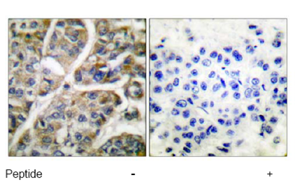 Immunohistochemistry (Formalin/PFA-fixed paraffin-embedded sections) - Anti-Granzyme B antibody (ab53097)