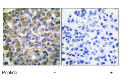 Immunohistochemistry (Formalin/PFA-fixed paraffin-embedded sections) - Anti-Grp75 antibody (ab53098)