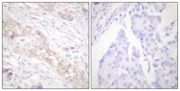 Immunohistochemistry (Formalin/PFA-fixed paraffin-embedded sections) - Anti-Smad2 (phospho S467) antibody (ab53100)