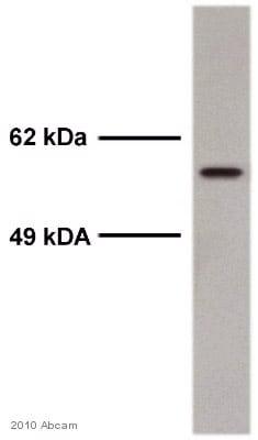 Western blot - Anti-Smad2 (phospho S467) antibody (ab53100)