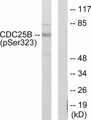 Western blot - Anti-Cdc25B (phospho S323) antibody (ab53103)