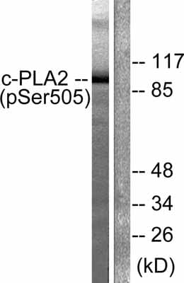 Western blot - Anti-Cytosolic Phospholipase A2 (phospho S505) antibody (ab53105)
