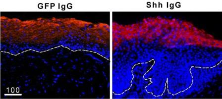 Immunocytochemistry/ Immunofluorescence - Anti-Involucrin antibody (ab53112)