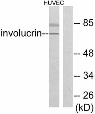 Western blot - Anti-Involucrin antibody (ab53112)