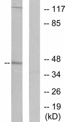 Western blot - Anti-Cytokeratin 19 antibody (ab53119)