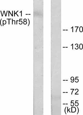 Western blot - Anti-WNK1 (phospho T58) antibody (ab53137)