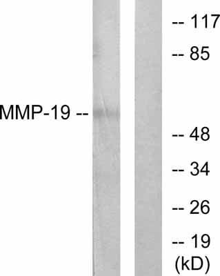 Western blot - Anti-MMP19 antibody (ab53146)