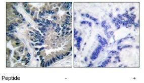 Immunohistochemistry (Formalin/PFA-fixed paraffin-embedded sections) - Anti-STAT2 antibody (ab53149)