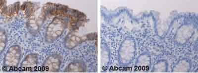 Immunohistochemistry (Formalin/PFA-fixed paraffin-embedded sections) - Anti-Claudin 4 antibody (ab53156)